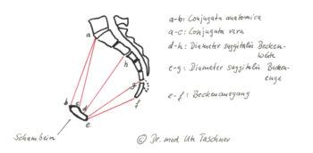 anatomische Zeichnung eines weiblichen Beckens